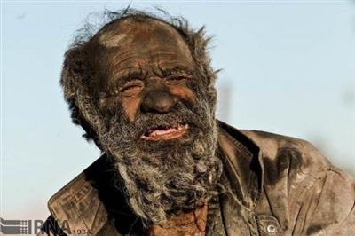 60年間風呂に入らない男(80) 食料はヤマアラシの腐った肉 喫煙パイプで動物の糞を吸う(画像あり)