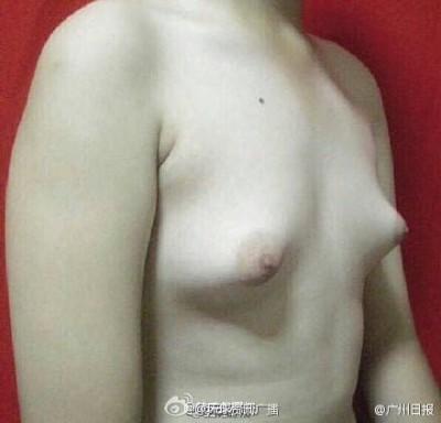 【中国】フライドチキンを食べまくって巨乳になった男