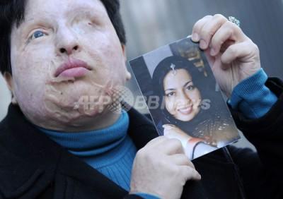 【インド】ロシア人女性、ホストファミリーに酸かけられ重傷
